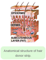 Anatomical Structure of Hair Donor Strip - Hair Transplant Manila Philippines by Manzanares Hair Restoration Center
