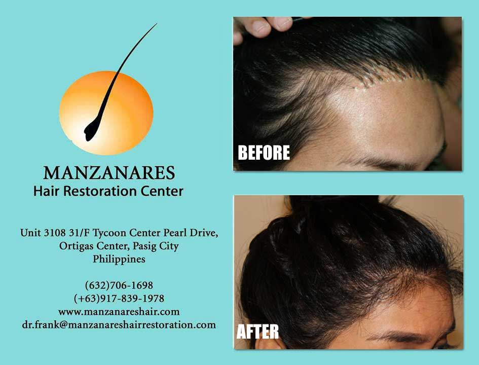 Corrective Procedures from Previous Restoration - Hair Transplant Manila Philippines by Manzanares Hair Restoration Center