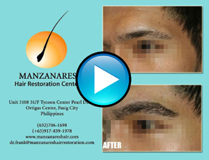 Eyebrow Hair Transplant Manila Philippines by Manzanares Hair Restoration Center
