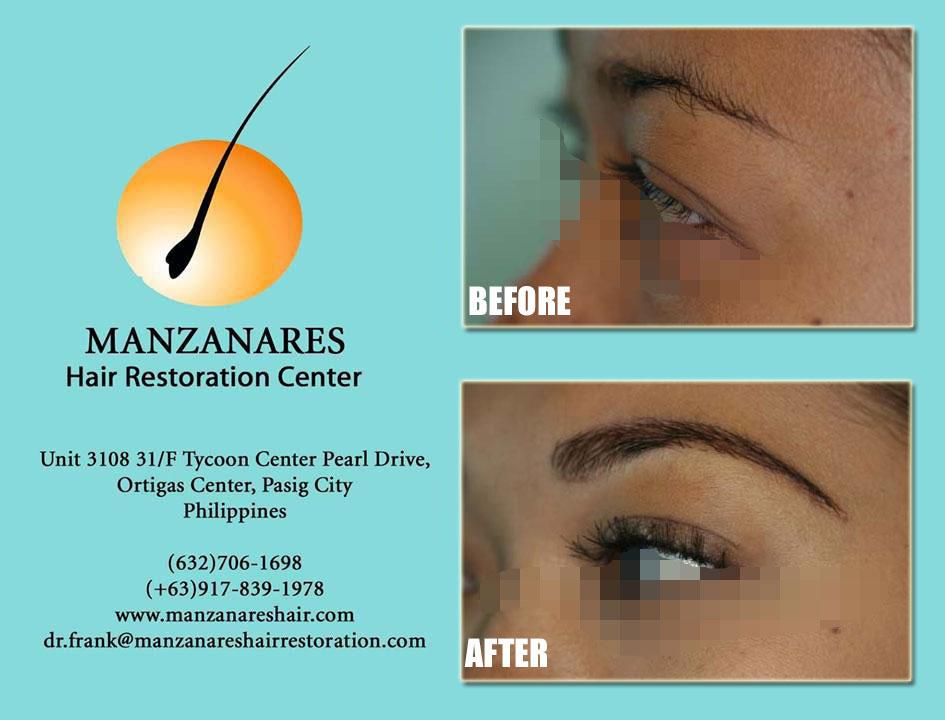 Eyelash Transplant And Restoration Hair Transplant Manila