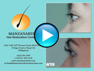 Eyelash Hair Transplant Procedure by Manzanares Hair Restoration Center