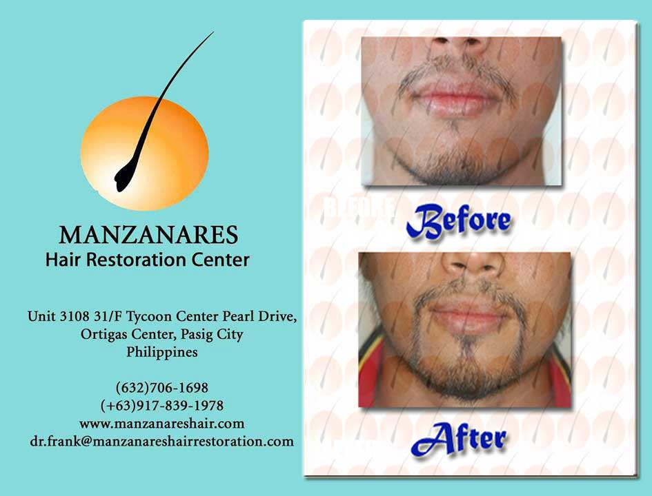 Facial Hair Transplant (Mustache and Goatee) by Manzanares Hair Restoration Center