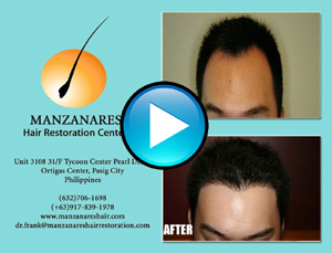 Hair Transplant Manila Philippines by Manzanares Hair Restoration Center