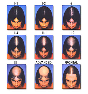 Ludwig Scale for Women's Hair Loss Hair Transplant Manila Philippines Manzanares Hair Restoration Center